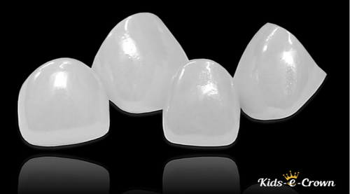 Metal Free Ceramic Crowns